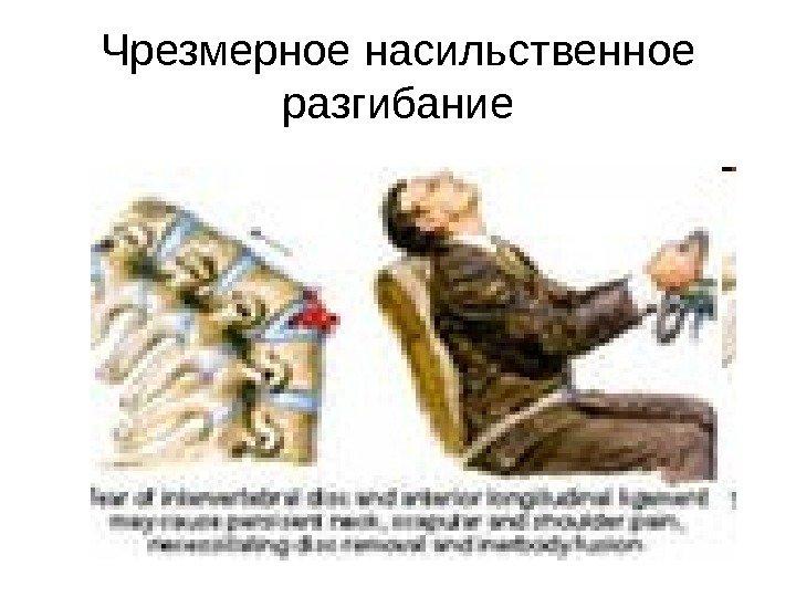 спинного мозга позвоночника картинка