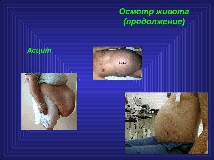 Как лечить асцит брюшной полости при циррозе