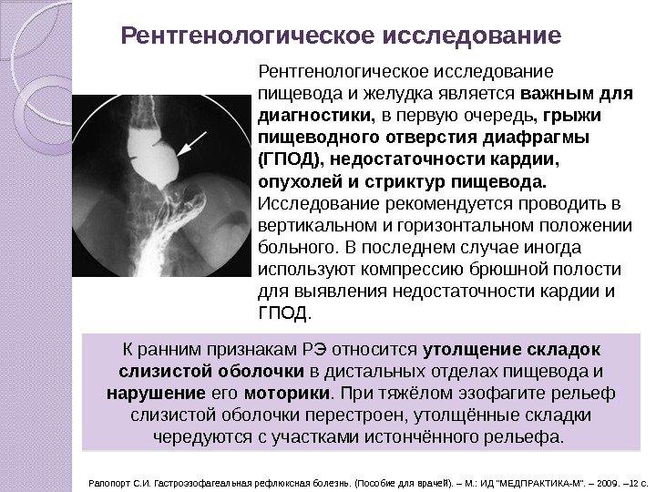 Синдром желудочной диспепсии. Гастроэзофагеальная рефлюксная болезнь