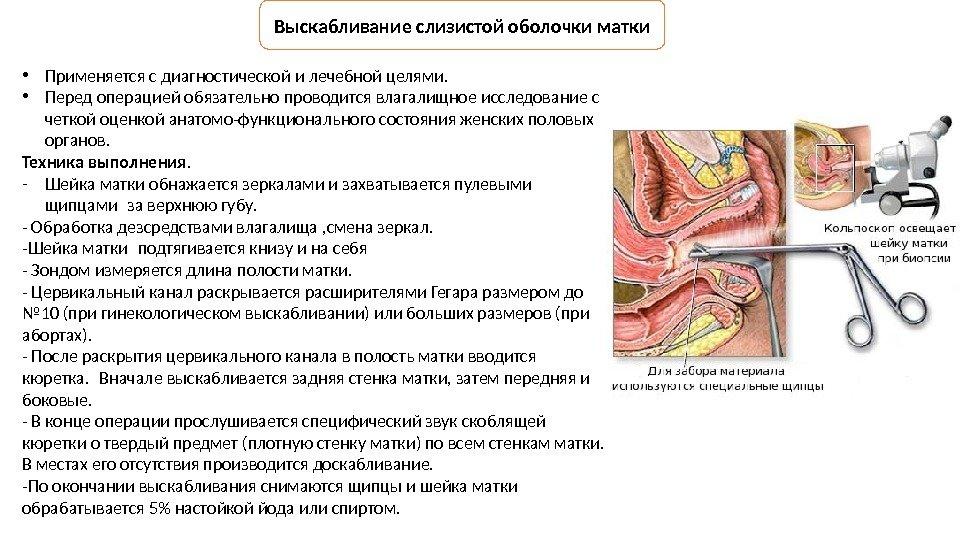 Гинекологическ ие операции Подготовила Оноприйчук А. Р.
