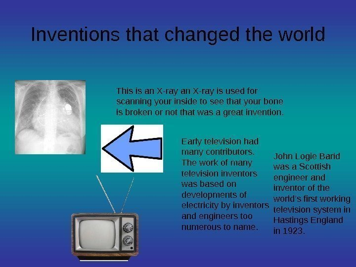 Inventions that changed the world This is an X-ray is used for