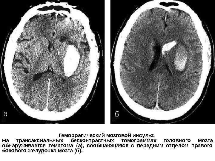 Инсульт с отеком мозга