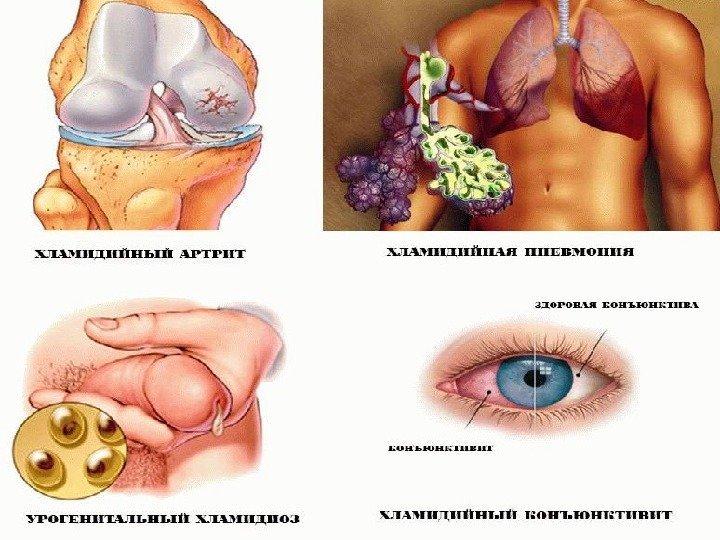 Хламидиозы Хламидиоз - это инфекция, которая вызывается