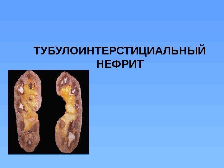тубулоинтерстициальный нефрит является
