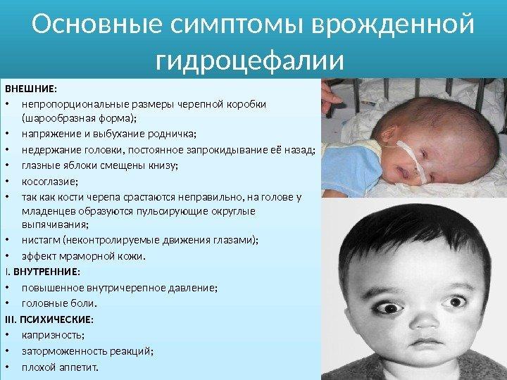 Norveg Шерсть как лечить у грудных детей внутри черепное давление белье, синтетическое, тем