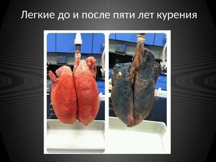 Становится плохо после курения сигарет