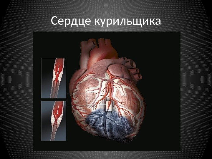 Влияние курения на сердечно сосудистую систему кратко