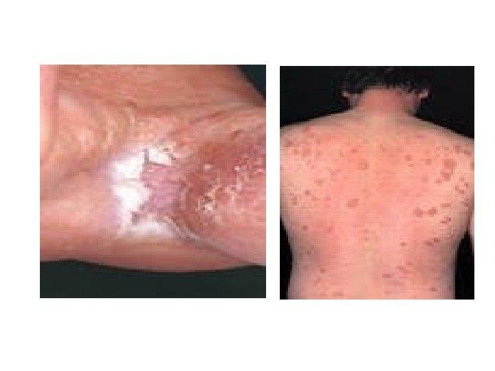 как почистить организм при аллергии народными средствами