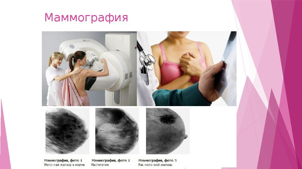 Учеба по маммографии