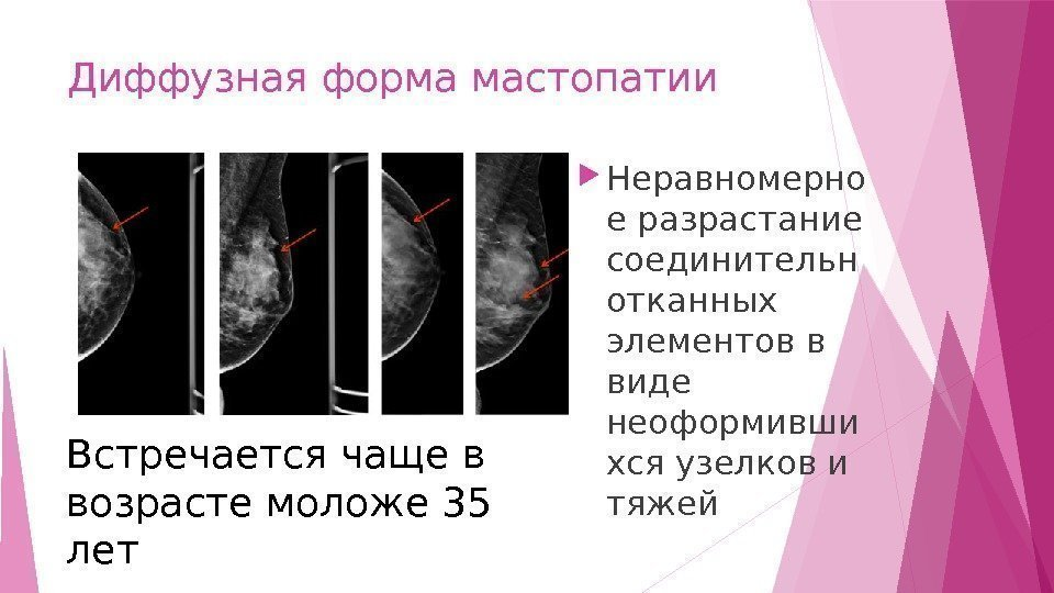 Рак молочной железы Факторы риска Дисгормональная