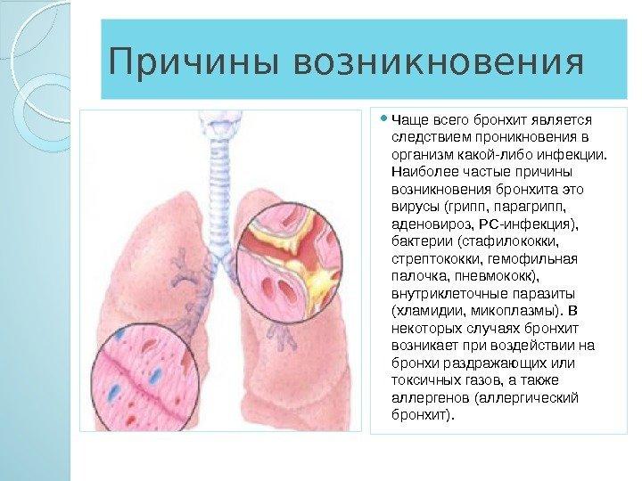 Микоплазменный бронхит лечение