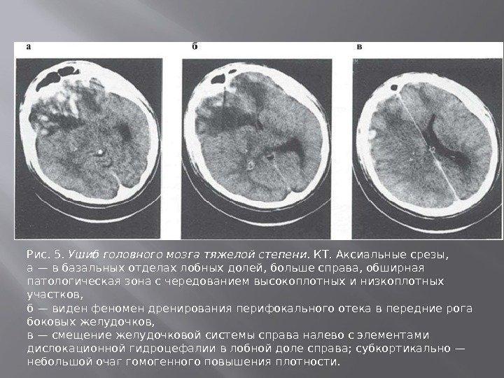 Томография может определить сотрясение мозга