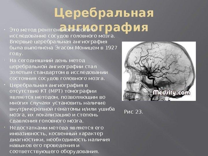 Методы исследования сосудов головного мозга