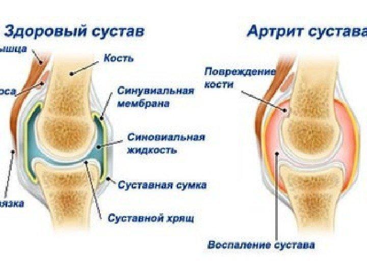 Как лечит артрит в домашних условиях быстро