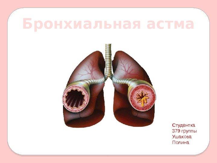 Бронхиальная астма приобретенная