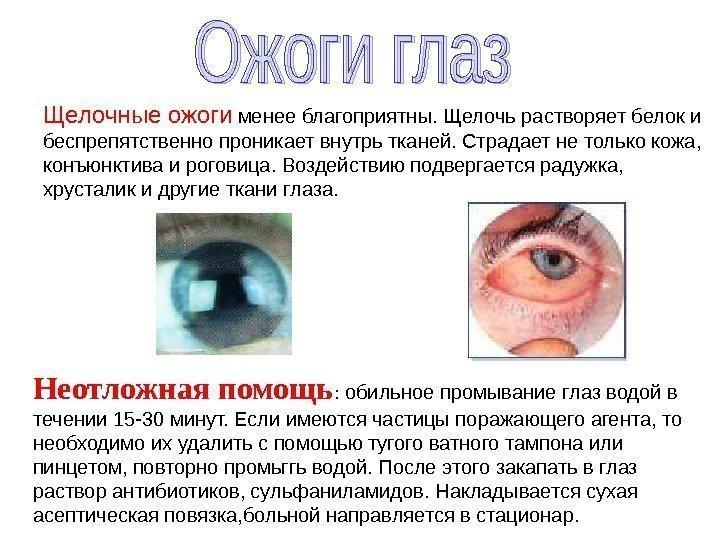 Чем вылечить глаза от сварки в домашних условиях 496