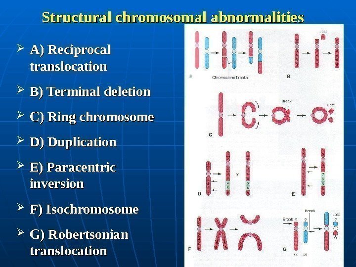 Structural chromosomal abnormalities A) Reciprocal translocation B) Terminal deletion C) Ring chromosome D)
