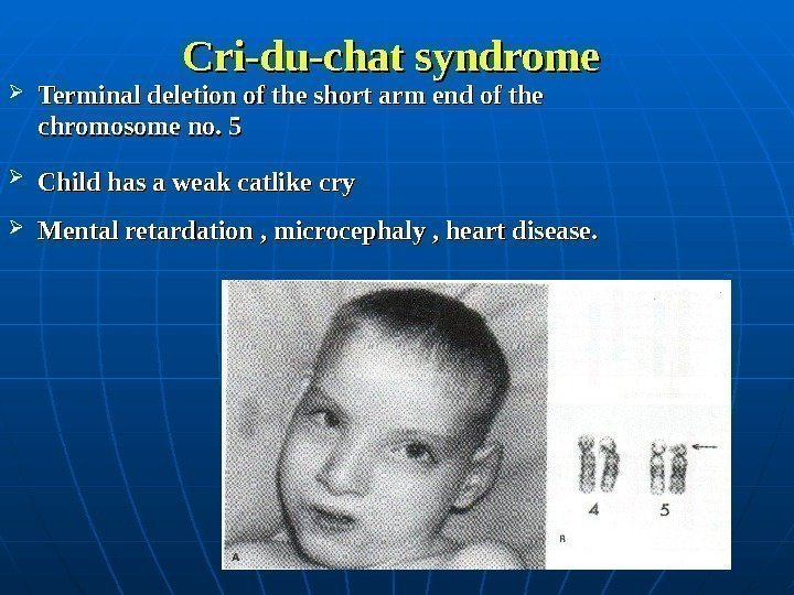 Cri-du-chat syndrome Terminal deletion of the short arm end of the chromosome no.