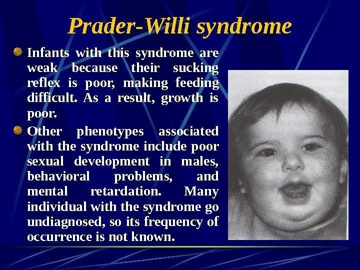 Prader-Willi syndrome Infants with this syndrome are weak because their sucking reflex