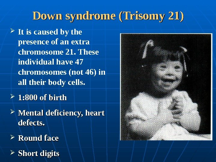 Down syndrome (Trisomy 21) It is caused by the presence of an extra