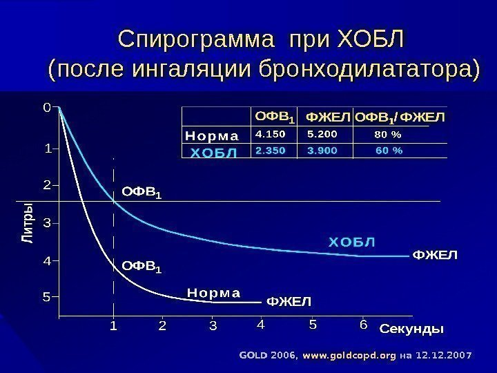 Спирограмма при ХОБЛ (после ингаляции бронходилататора) GOLD 2006,  www. goldcopd. org  на
