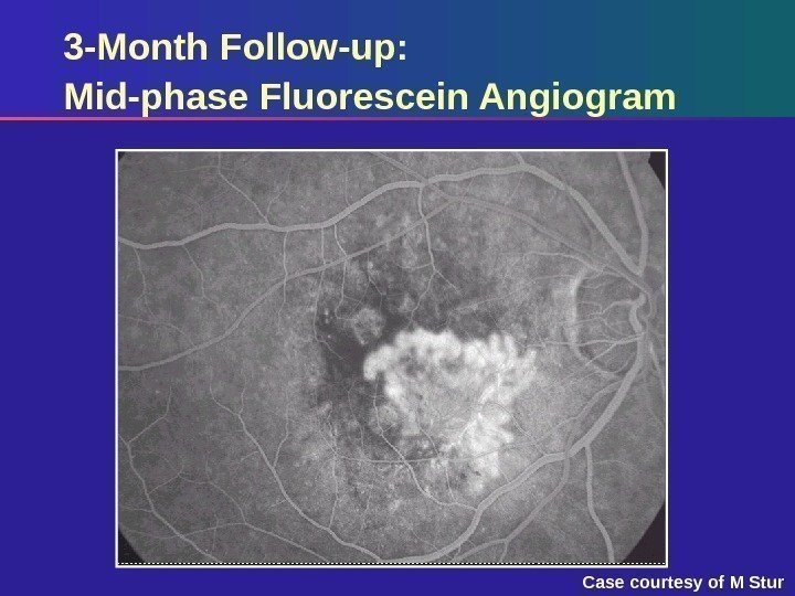 3 -Month Follow-up:  Mid-phase Fluorescein Angiogram Case courtesy of M Stur