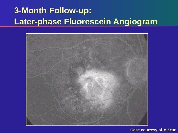 3 -Month Follow-up:  Later-phase Fluorescein Angiogram Case courtesy of M Stur
