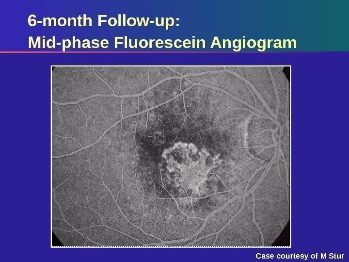 6 -month Follow-up: Mid-phase Fluorescein Angiogram Case courtesy of M Stur
