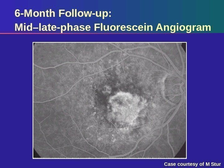 6 -Month Follow-up: Mid–late-phase Fluorescein Angiogram Case courtesy of M Stur