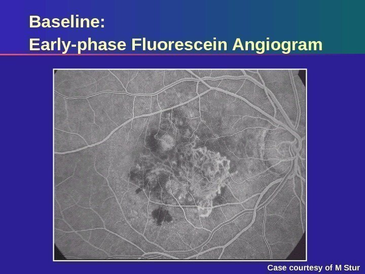 Baseline: Early-phase Fluorescein Angiogram Case courtesy of M Stur