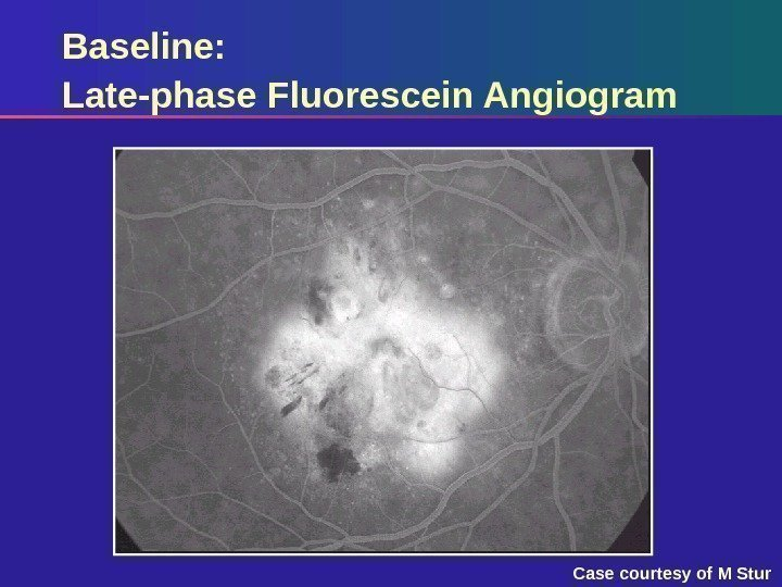 Baseline: Late-phase Fluorescein Angiogram Case courtesy of M Stur