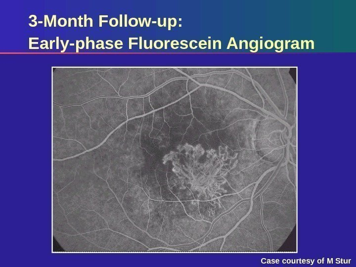3 -Month Follow-up:  Early-phase Fluorescein Angiogram Case courtesy of M Stur