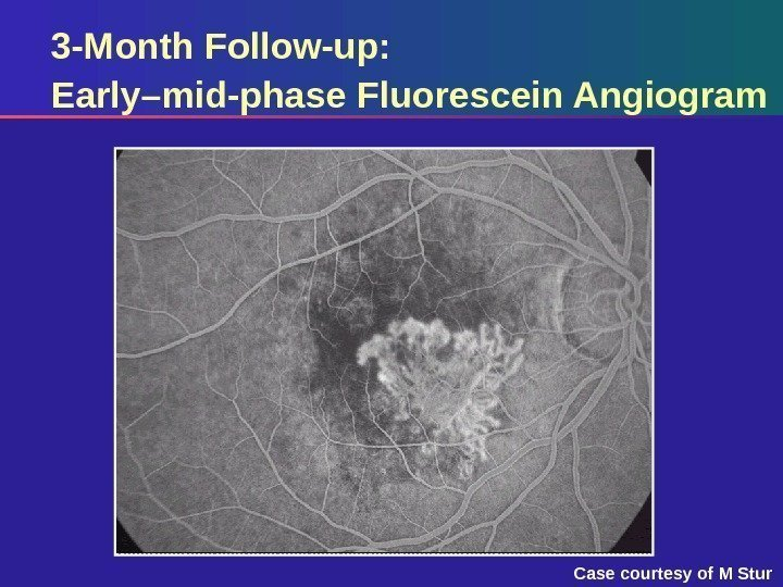 3 -Month Follow-up:  Early–mid-phase Fluorescein Angiogram Case courtesy of M Stur