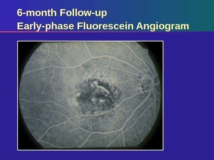 6 -month Follow-up Early-phase Fluorescein Angiogram