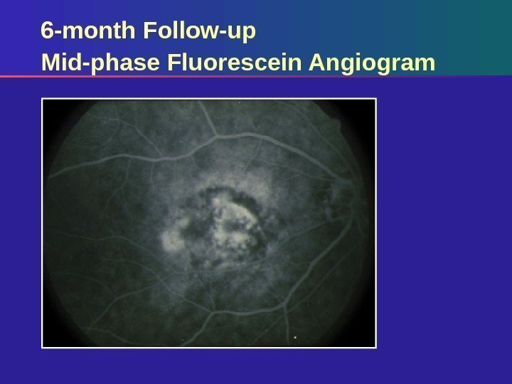 6 -month Follow-up Mid-phase Fluorescein Angiogram
