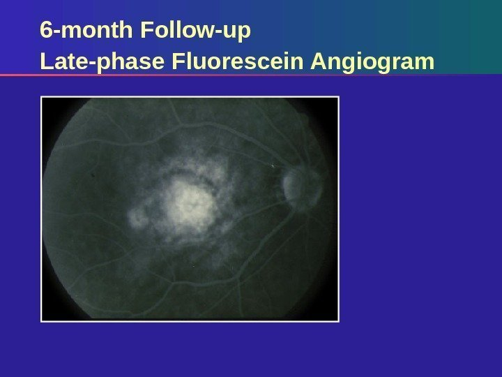 6 -month Follow-up Late-phase Fluorescein Angiogram