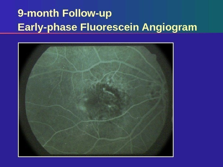 9 -month Follow-up Early-phase Fluorescein Angiogram