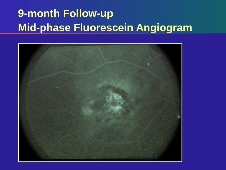 9 -month Follow-up Mid-phase Fluorescein Angiogram