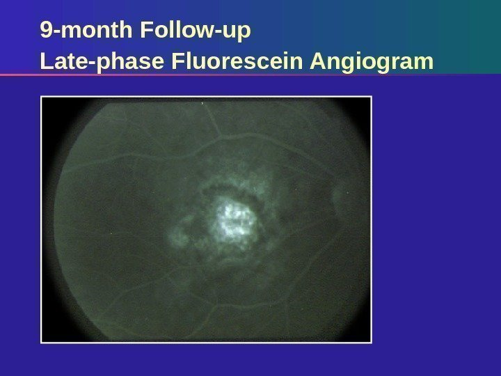 9 -month Follow-up Late-phase Fluorescein Angiogram