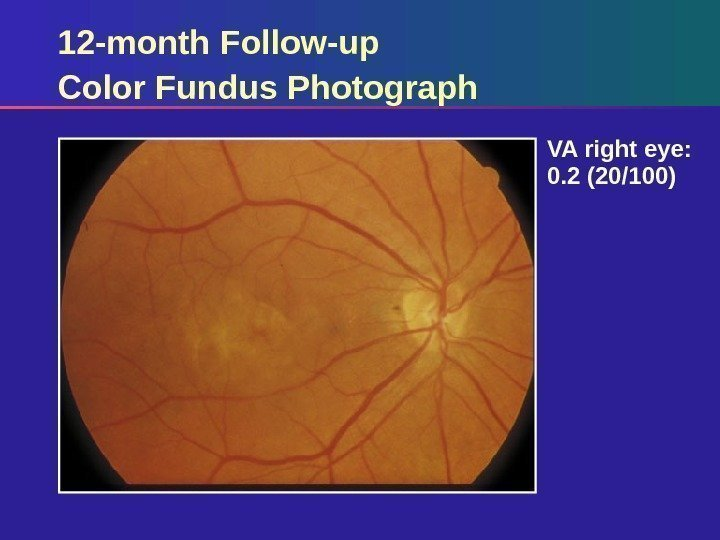 12 -month Follow-up Color Fundus Photograph VA right eye:  0. 2 (20/100)