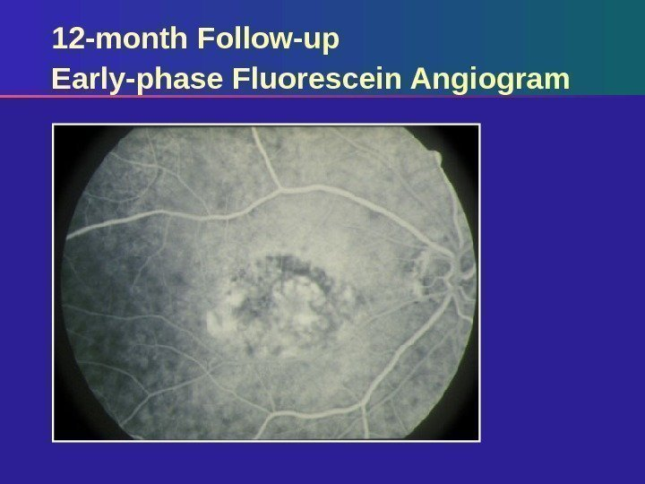 12 -month Follow-up Early-phase Fluorescein Angiogram