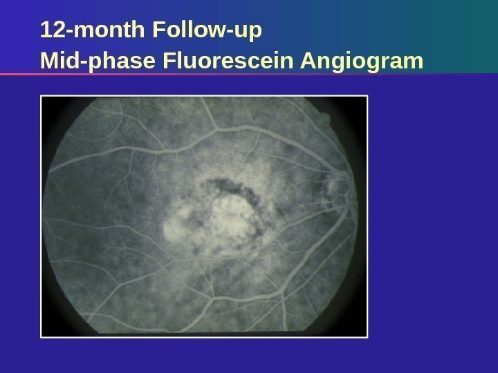 12 -month Follow-up Mid-phase Fluorescein Angiogram