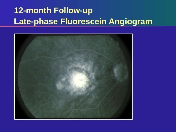 12 -month Follow-up Late-phase Fluorescein Angiogram