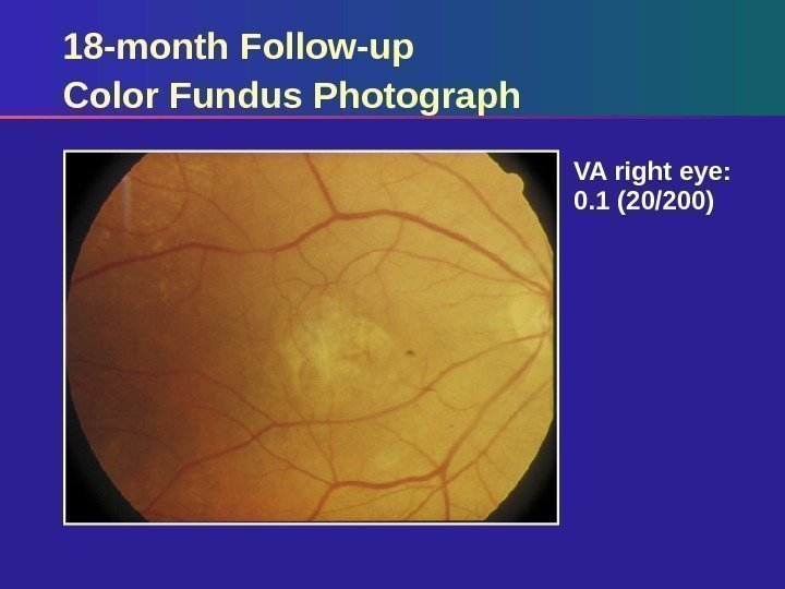 18 -month Follow-up Color Fundus Photograph VA right eye:  0. 1 (20/200)