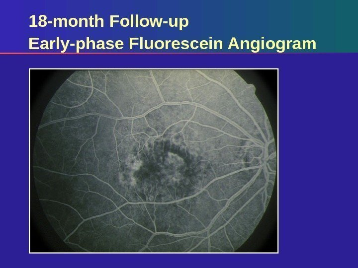 18 -month Follow-up Early-phase Fluorescein Angiogram