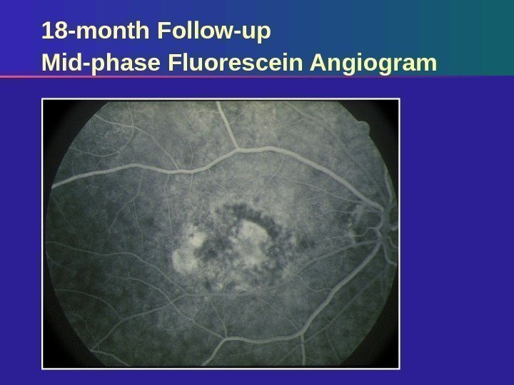 18 -month Follow-up Mid-phase Fluorescein Angiogram