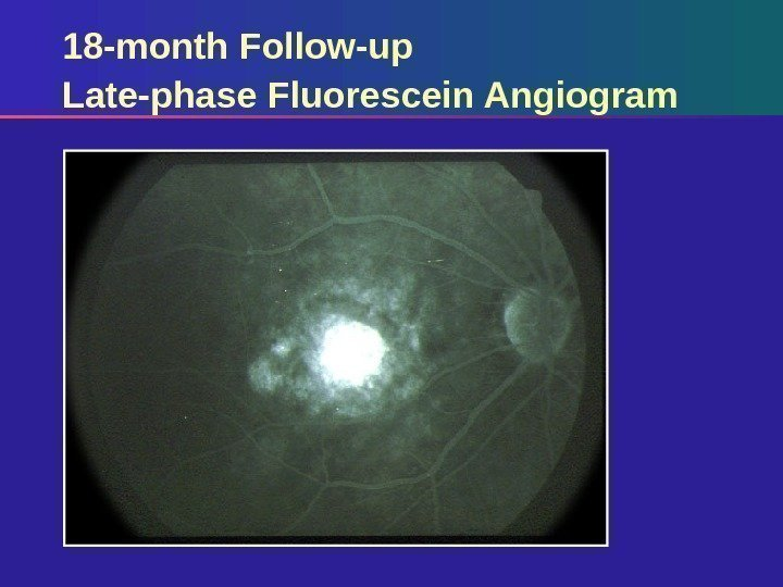 18 -month Follow-up Late-phase Fluorescein Angiogram