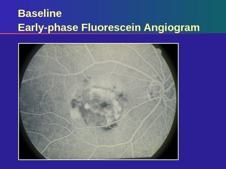 Baseline Early-phase Fluorescein Angiogram