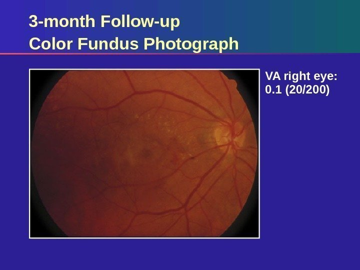 3 -month Follow-up Color Fundus Photograph VA right eye:  0. 1 (20/200)