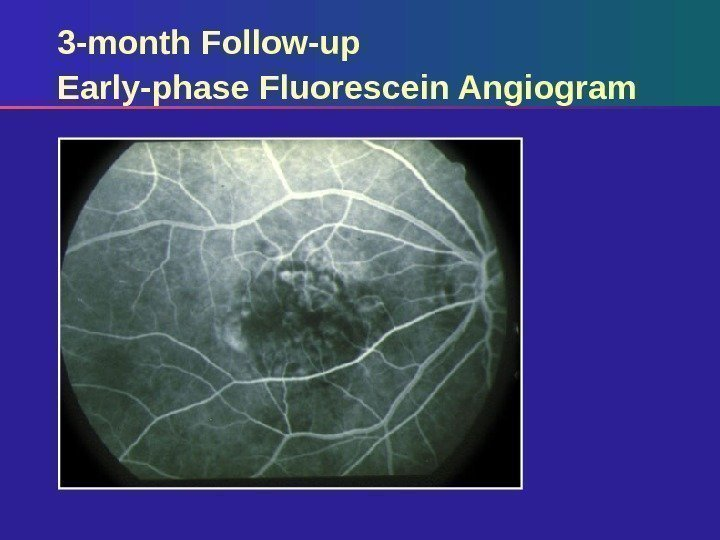 3 -month Follow-up Early-phase Fluorescein Angiogram